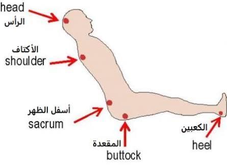 مناطق الجسم المُعرّضة للإصابة بقرحة الفراش للمريض الجالس على كرسي (رسم تخطيطي)