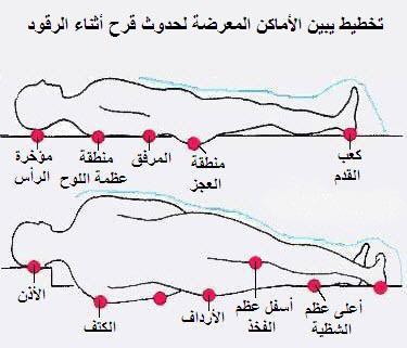 مناطق الجسم المُعرّضة للإصابة بقرحة الفراش للمريض المُمَدّد على السرير (رسم تخطيطي)