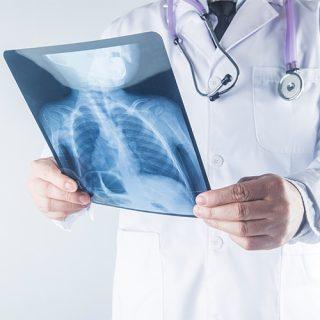 خدمة الأشعة المنزلية - تيبيكال كير